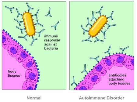 AutoimmuneDisorder
